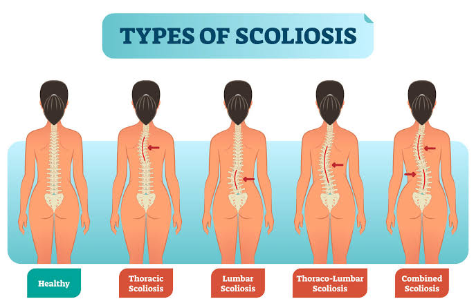 Keep Your Backbone Straight With Scoliosis Treatment